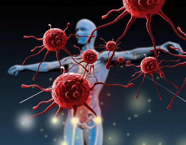 Khử trùng các tế bào ung thư ở giai đoạn đầu